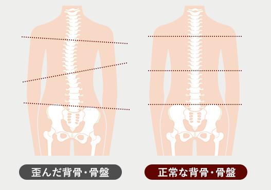 歪んだ背骨・骨盤、正常な背骨・骨盤の図